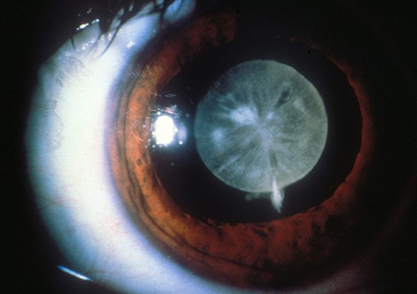 Researchers from the University of Manchester have welcome news for those with congenital cataracts